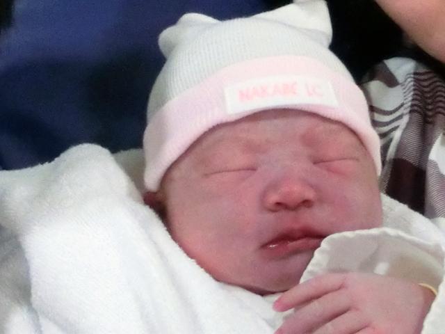 新生児 顔 青白い